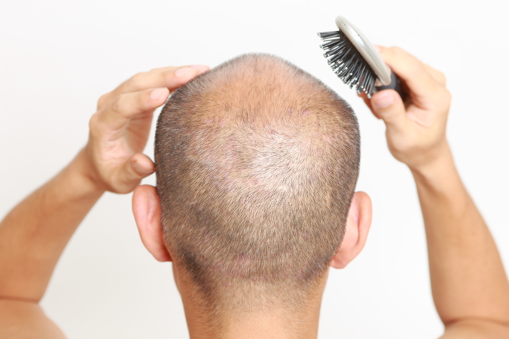 PRP for Hair Loss Chicago
